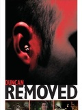 Duncan Removed